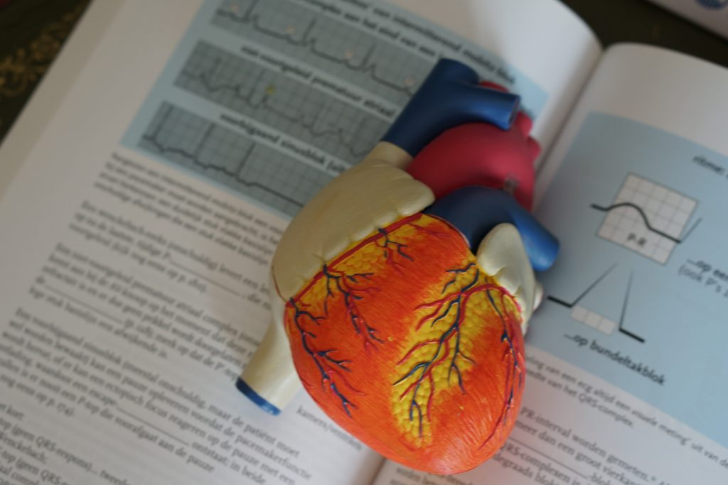 powikłania sercowo-naczyniowe w cukrzycy